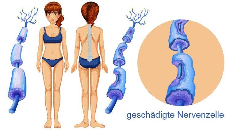Multiple Sklerose Schaubild